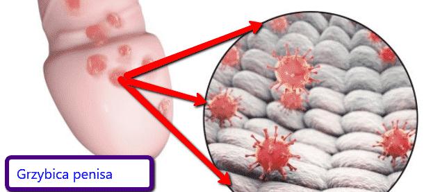 grzybica penisa leczenie
