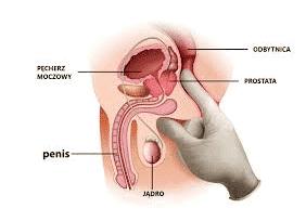 badanie prostaty