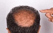 hairnovum na wypadające włosy